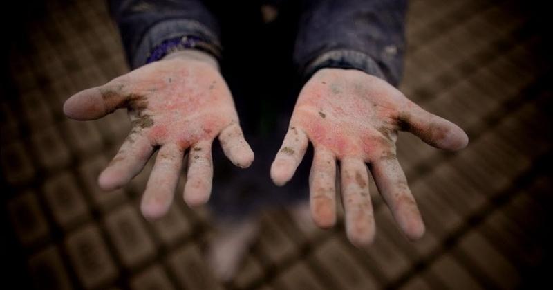 «Людям нужно рассказывать о проблеме детского труда»